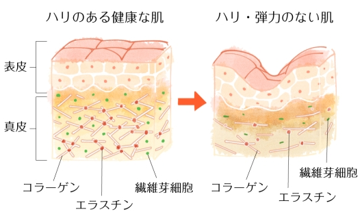 真皮と表皮の図