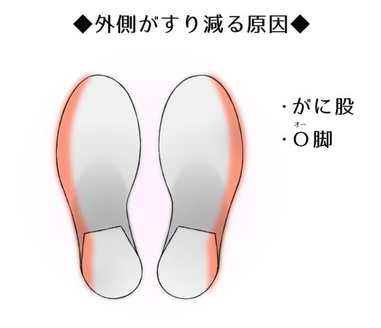 靴のすり減り がに股
